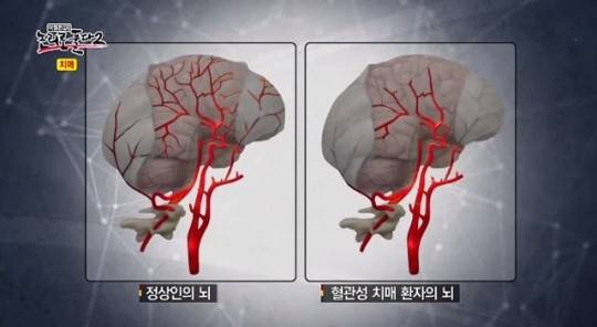 혈관성 치매.jpg
